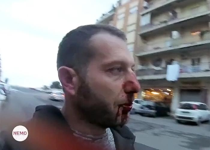 Ostia, dopo Roberto Spada un secondo arresto per l'aggressione alla troupe Rai